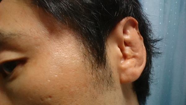 耳がギョウザ