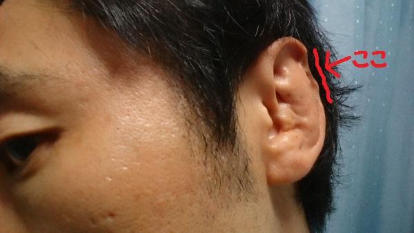 耳がギョウザ、フチも欠ける