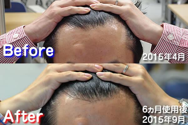 育毛対策をする前と後の比較