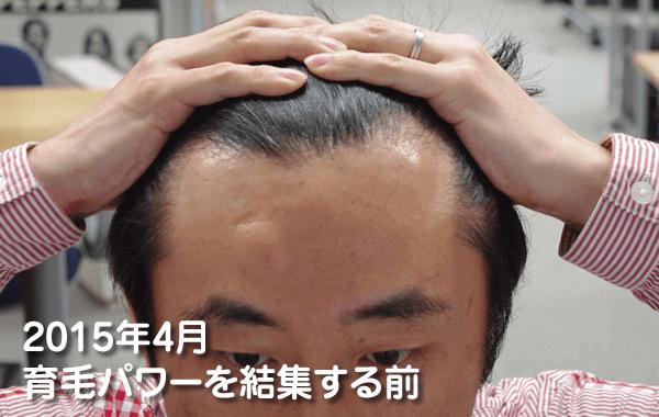育毛パワーを結集させる前の頭皮