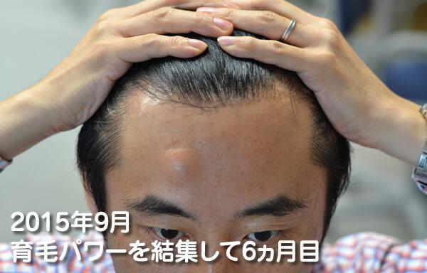 4つの育毛対策続けて半年経った頭皮