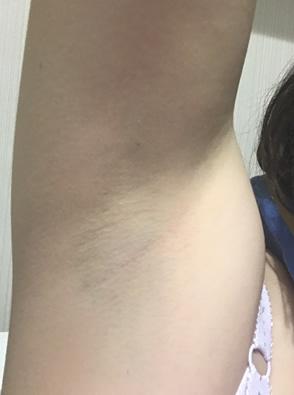 湘南美容クリニックで医療脱毛2回目直後のワキ